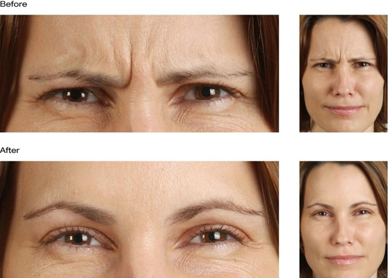 botox before after forehead forrows